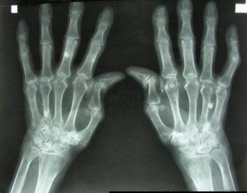 rheumatoid-arthritis-1024x800